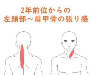 にかけて 痛み 首 の から 肩